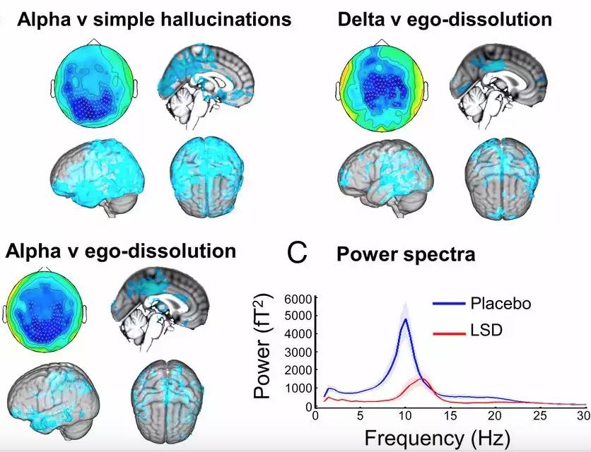 Correlações neurais da experiência LSD revelada pela neuroimagem multimodal